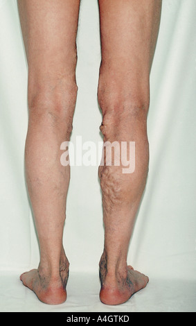 A photograph of a male with varicose veins - Stock-Bilder