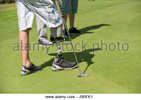 Close Up Of Male Golfer With Artificial Leg Standing By Green - Stock-Bilder